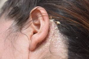 what makes old womens pubic hair itch at times do you have an itchy scalp 5 common problems and fixes