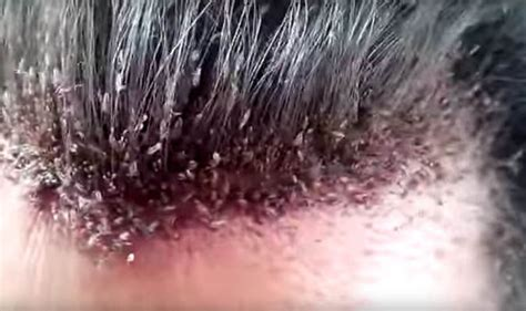 What Does Bed Bugs Look Like Watch Stomach Churning Shows Man S Hairline