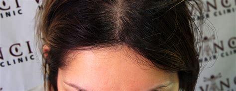 cheap haircuts cardiff hair transplant manchester hair transplant manchester
