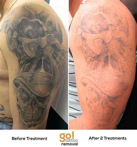 quick fade tattoo removal we started to fade this arm back in january and we re