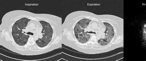 mosaic pattern pulmonary hypertension roentgen ray reader mosaic attenuation
