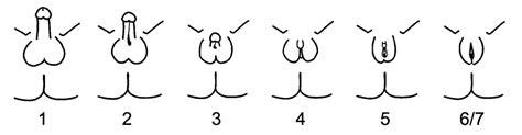 penoscrotal webbing wikipedia testicular feminization syndrome wiki