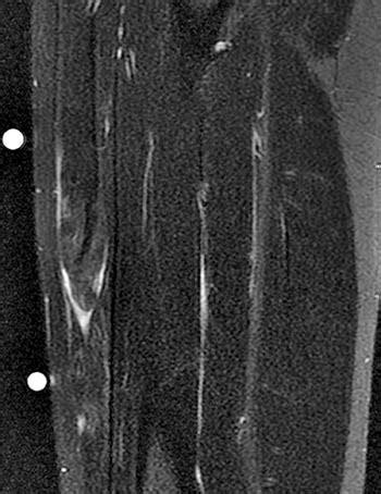 MRI of Rectus Femoris / Quadriceps Injury - Radsource