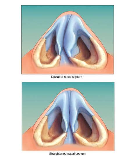 deviated septum diagram home remedies and medicines for deviated septum no