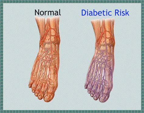 diabetic neuropathy   dangerous complication