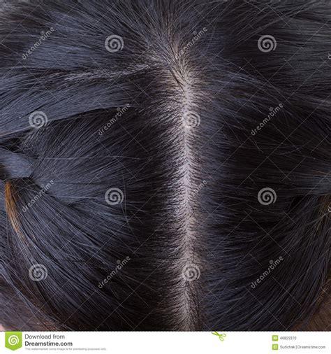 haar schuppen schwarzes haar mit schuppen auf kopf stockfoto bild