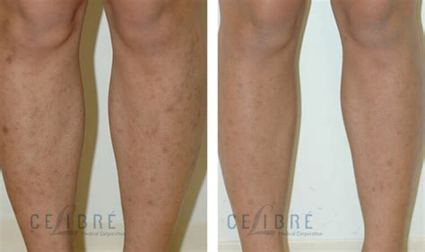 best treatment for surgical scars laser surgery laser surgery laser surgery laser laser