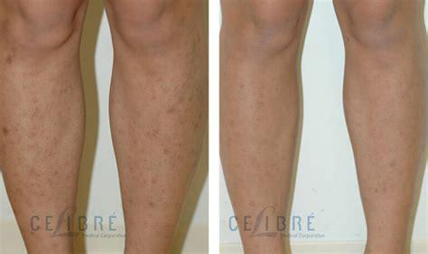 scar removal dermefface fx7 ebay dermefface fx7 diminish scars