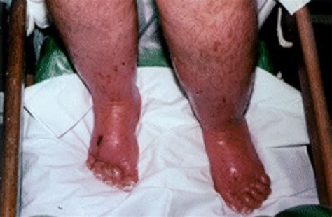 severe swelling in feet after c section image gallery severe edema