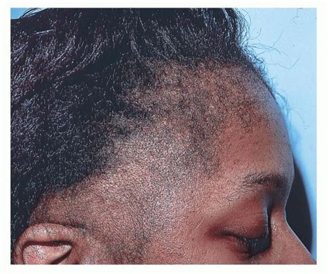 best hairstyles to prevent traction alopecia how to prevent traction alopecia short hairstyle 2013