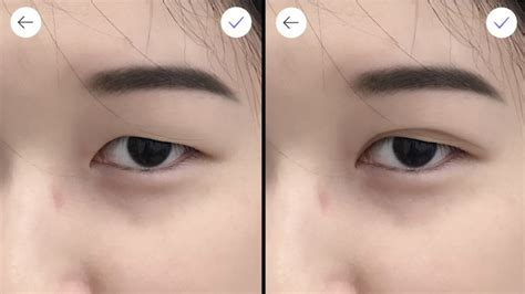 double eyelid why double eyelid surgery is on the rise in asia rising