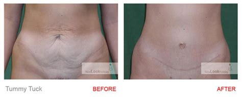 before and after photos cosmetic surgery abroad new