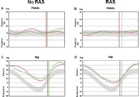 representative   kinematic patterns  pelvic tilt  hip  scientific