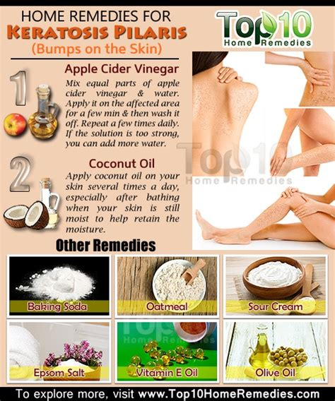 home remedies for keratosis pilaris bumps on the skin
