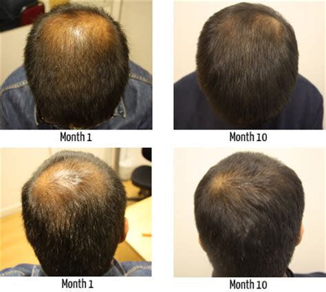 to bald hair cut net crown area is left longer such hair loss of the crown and vertex regrow hair on a
