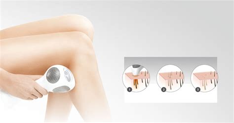 how does diode laser work for hair removal what is laser hair removal how does laser hair removal work tria