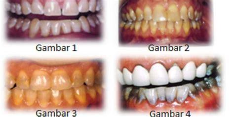 Pemutihan Gigi Di Bandung gigi kuning akibat antibiotik kompas