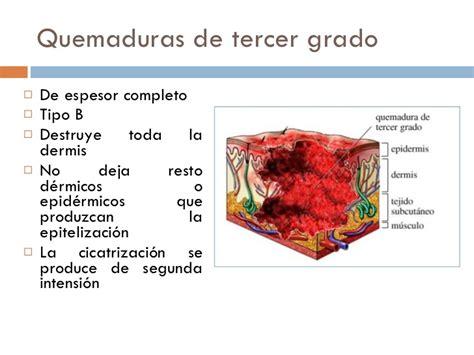 quemaduras cuarto grado quemaduras de cuarto grado related keywords quemaduras