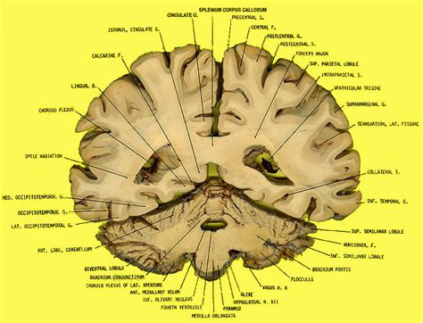 coronal sections of the brain coronal brain labeled www pixshark com images