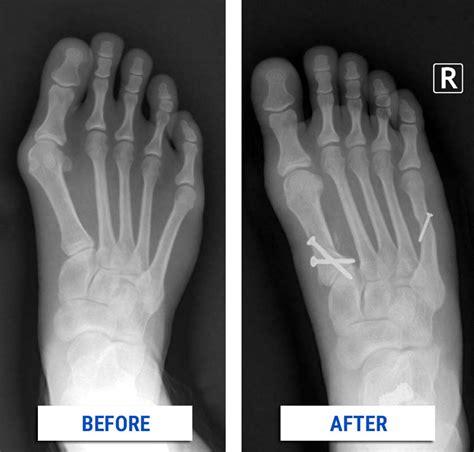 bunion correction alpine foot specialists