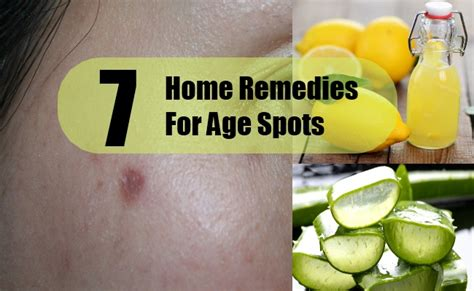 age spots home remedies treatments cures