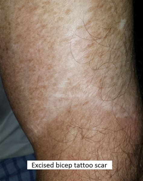 scar from tattoo removal excision of a versus picosure laser