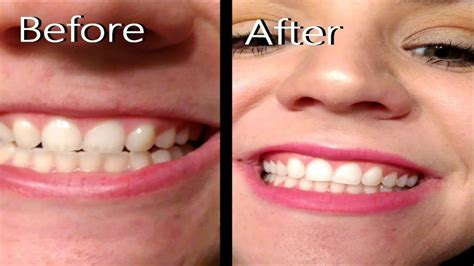 review crest white strips  hour express teeth