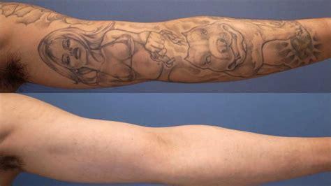 タトゥー除去レーザー経過報告1年9ヵ月 laser tattoo removal interim report