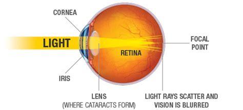 cataract surgery diagram 2012grade10 cataracts