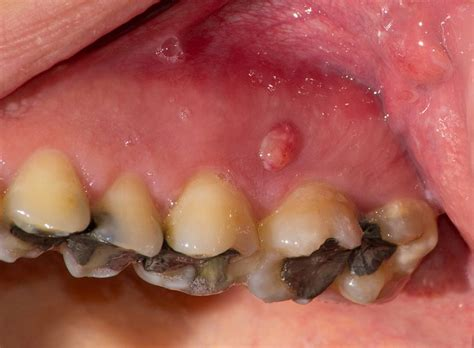 pimple on gums causes prevention and treatment