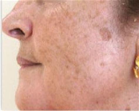 imagenes de manchas oscuras en la cara me cuido 191 y t 250 septiembre 2013