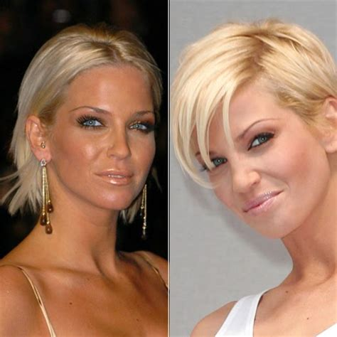 pre brain surgery hairstyles short hairstyles for after surgery best short women