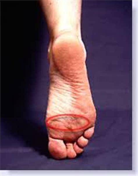 dolore sopra la testa valerio sansone il piede metatarsalgia