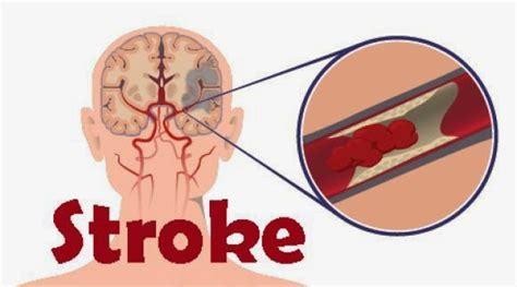 gejala penyebab penyakit stroke dan cara penyembuhan obat stroke alami paling ampuh