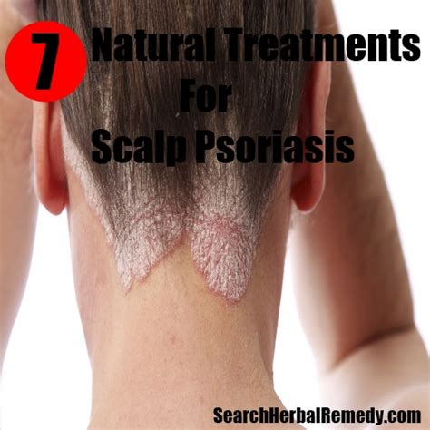 best hairstyles for scalp psoriasis best hairstyles for scalp psoriasis best hairstyles for
