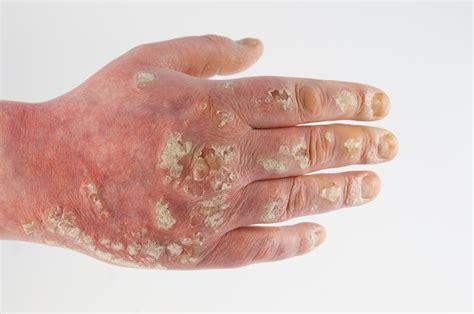 haarausfall durch schuppen hautflechte symptome und behandlung