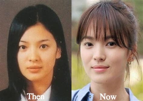 lee seung gi predebut song hye kyo plastic surgery before and after photos