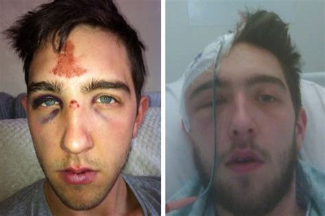 plats in head gallery electrician needs metal plate in skull after welsh thugs