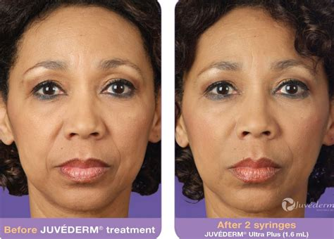 juvederm hair styles juvederm eye filler before and after hairsstyles co