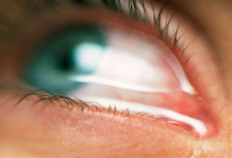 eyes sensitive to light and watery eye allergies symptoms triggers treatments with pictures