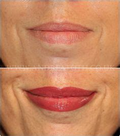tattoo non permanent quebec before and after picture of lip liner tattooed on after