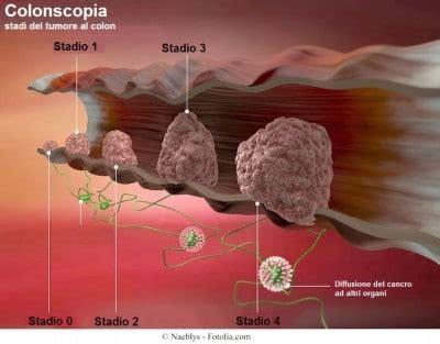 organi interni lato destro dolore al fianco destro alto o basso fegato colon e