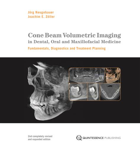Cd E Book Cone Beam Volumetric Imaging In Dental And Maxillofaci preview cone beam volumetric imaging in dental and maxillofacial medicine fundamentals