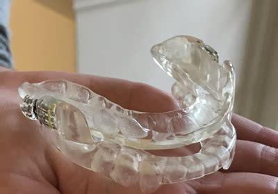 leeming dental mandibular advancement device leeming