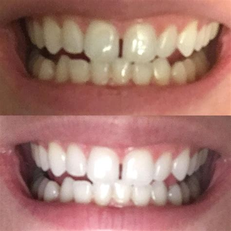pin  tc capulcu serdar suealp  dis teeth whitening