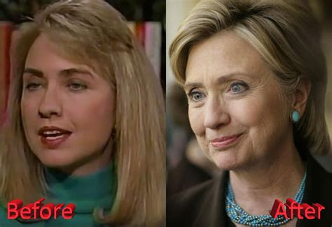 did hillary clinton get a facelift hillary clinton plastic surgery a presidential boost