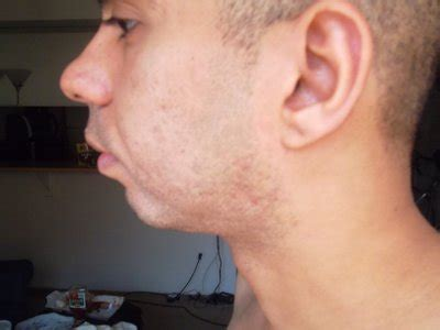 weak receeding chin why is chin implant not a solution for receding chin