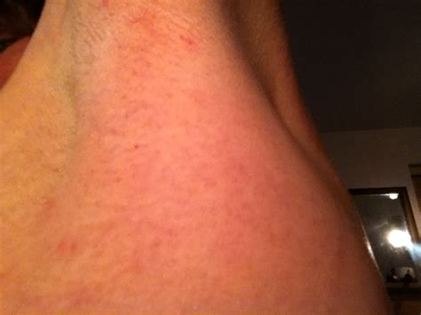 underarm rash causes what causes armpit blisters with xan s not art life