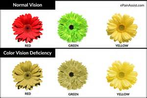 symptoms of color blindness color blindness or color vision deficiency causes symptoms