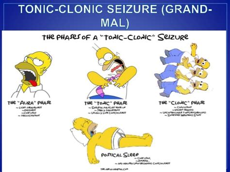 seizure symptoms approach to seizure cme